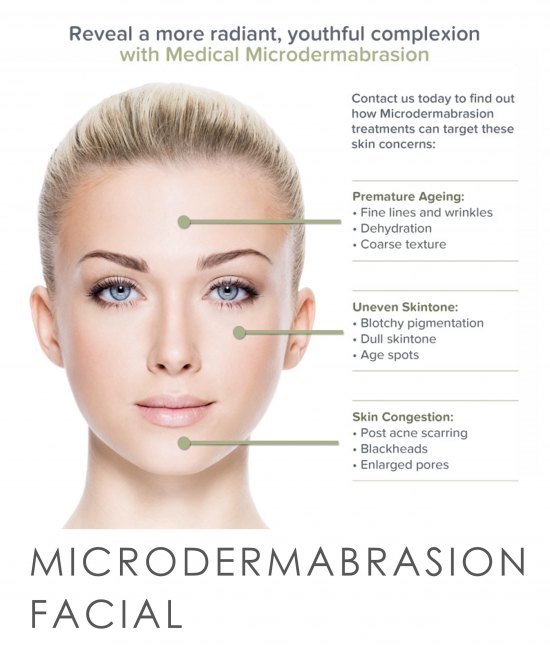 3 sessions of 30 minute microdermabrasion with Emma